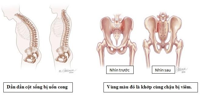 Biểu hiện  và biến chứng của viêm cột sống dính khớp