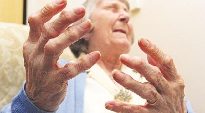 Bệnh viêm khớp dạng thấp ở người già
