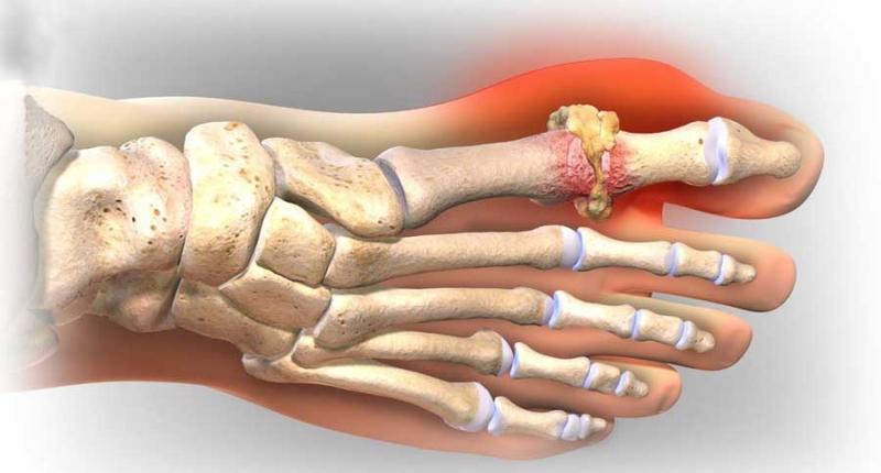Bệnh Gout gây sưng đau giữa khớp ngón chân