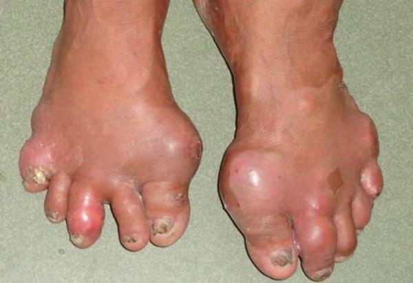 Sưng phù ở tay, chân là biểu hiện của bệnh gout