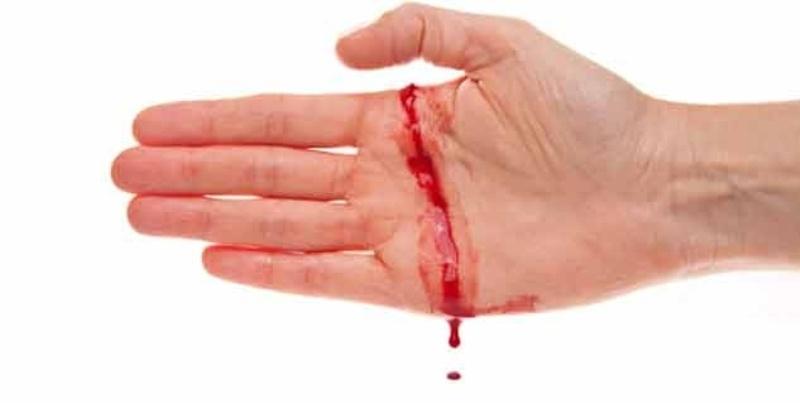 Bệnh Hemophilia