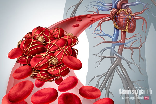 Tiếp xúc nhiều với máy tính có thể dẫn đến bệnh huyết khối