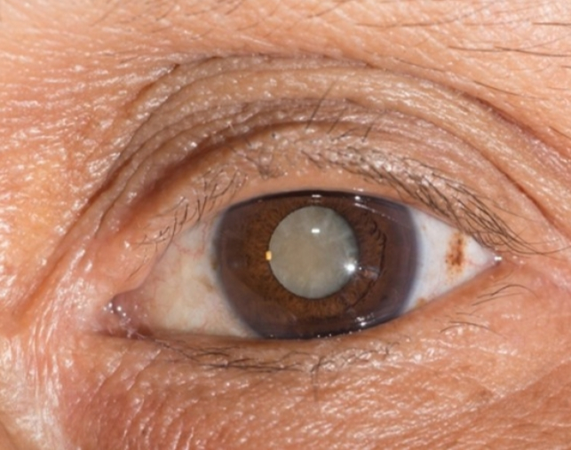 Bệnh khô mắt, đục thủy tinh thể