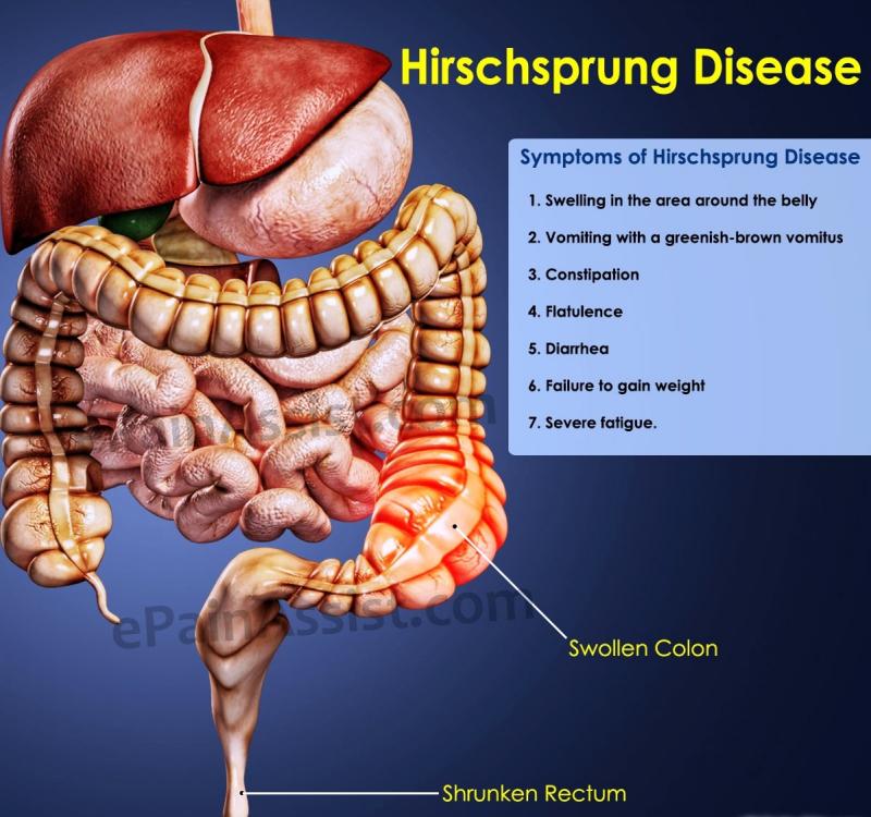 Bệnh phình đại tràng bẩm sinh (Hirschsprung)