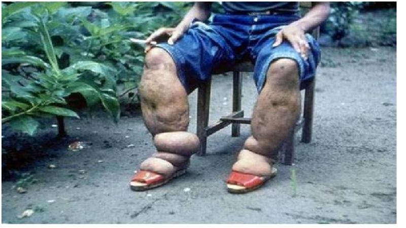 Bệnh nhân bị mắc hội chứng chân voi