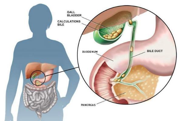 Sỏi mật hình thành khi có quá nhiều cholesterol