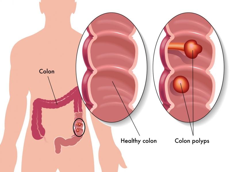 Poly tuyến đại tràng là một trong những nguyên nhân gây ung thư đại tràng