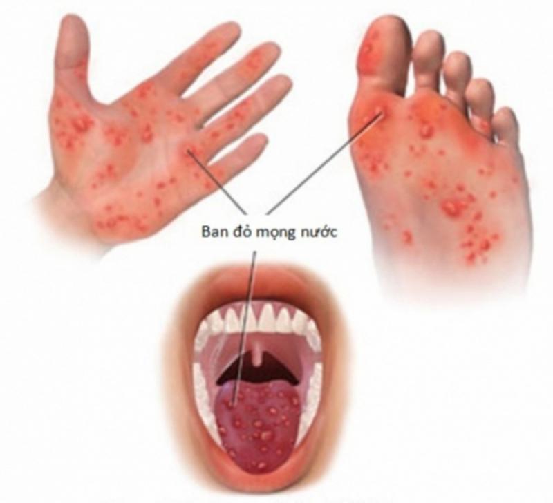 Triệu chứng của bệnh tay chân miệng.