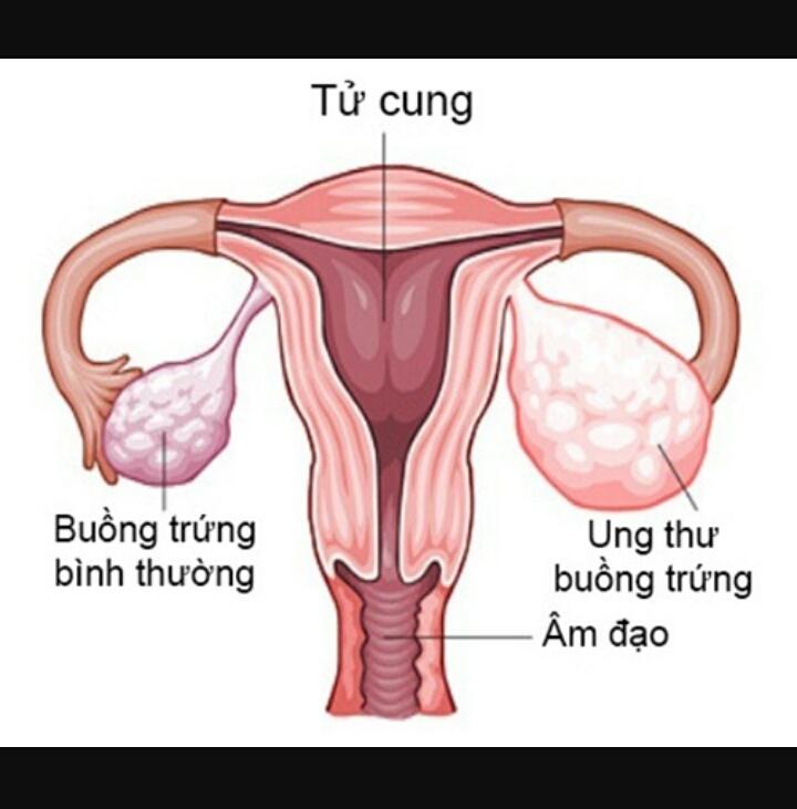 Những bất thường của buồng trứng nữ giới khi bị ung thư