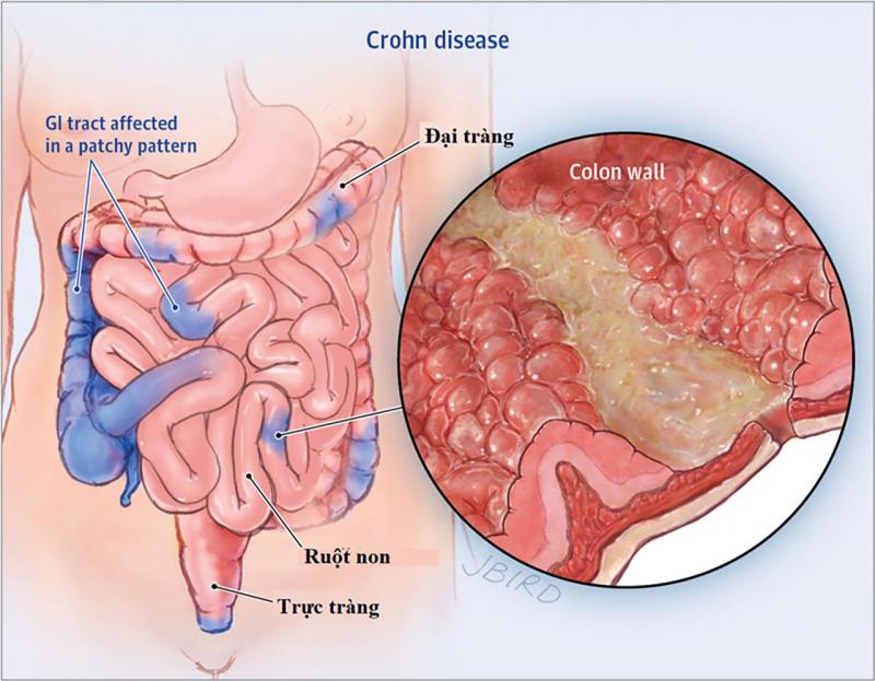 Bệnh viêm ruột từng vùng (Crohn)