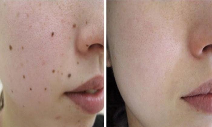 Làn da sạch sẽ nốt ruồi sau điều trị tại BV da liễu Tp HCM