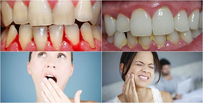 Viêm nha chu là nguyên nhân gây mất răng