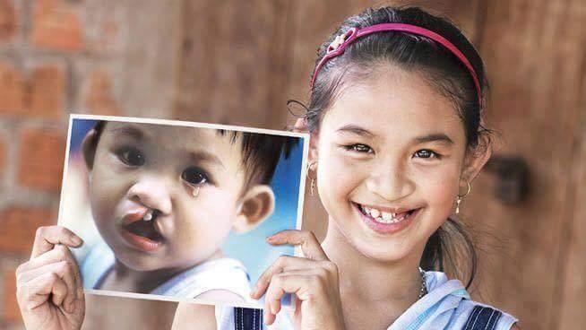 Nhiều trẻ em được phẫu thuật hở hàm ếch