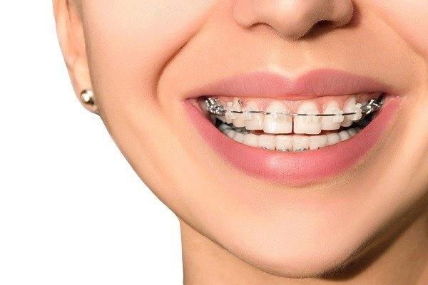 Niềng răng khắc phục được nhiều nhược điểm của hàm răng và trả lại vẻ đẹp cho gương mặt