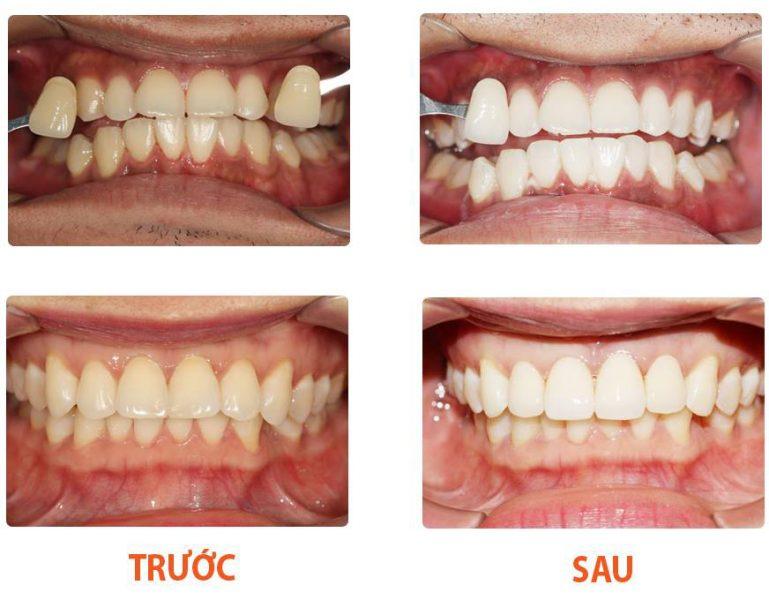 Hình ảnh khách hàng tẩy trắng răng tại Bệnh viện Thái Thượng Hoàng