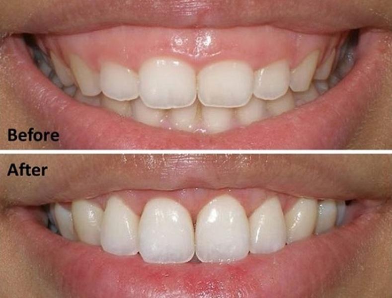 Hình ảnh khách hàng trước và sau điều trị cười hở lợi tại bệnh viện thẩm mỹ Á âU