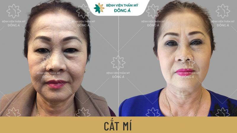 Hình ảnh khách hàng trước và sau khi cắt mí tại Bệnh viện thẩm mỹ Đông Á