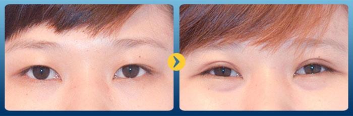 Hình ảnh khách hàng cắt mắt hại mí tại Bệnh viện Hàn Quốc