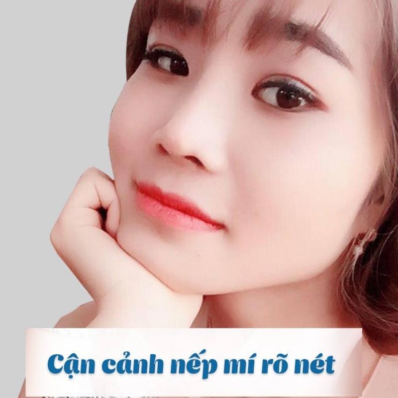 Bệnh viện thẩm mỹ Kangnam - Địa chỉ bấm mí đẹp và an toàn nhất Hà Nội
