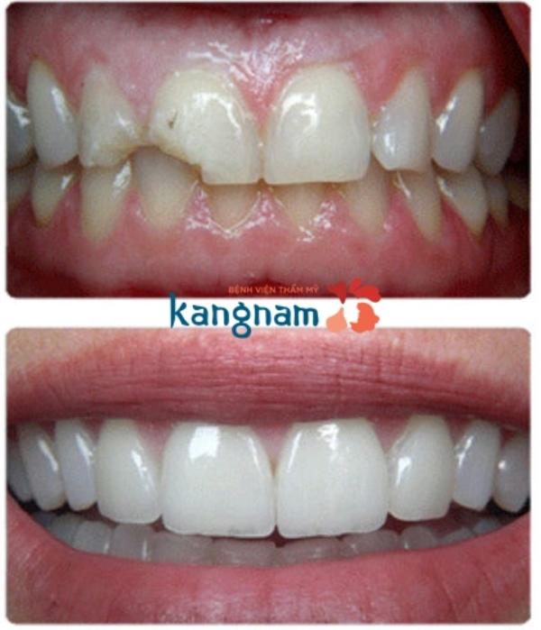 Kết quả trước và sau bọc răng sứ tại Kangnam
