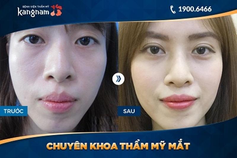 Hình ảnh khách hàng cắt mắt hai mí tại TMV Kangnam
