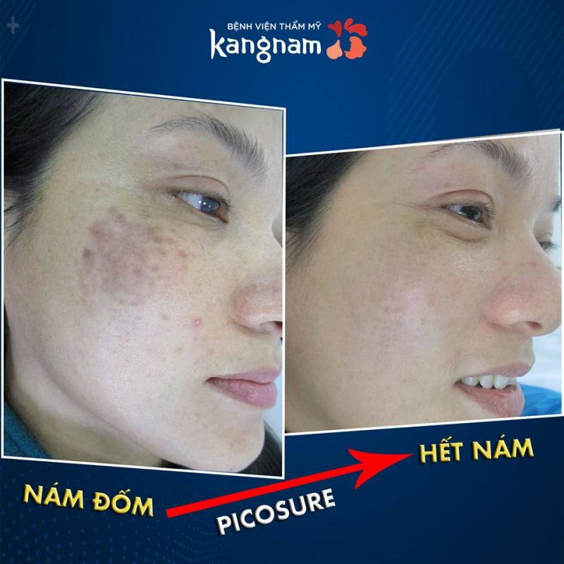 Sự thay đổi sau khi điều trị nám tại Kangnam