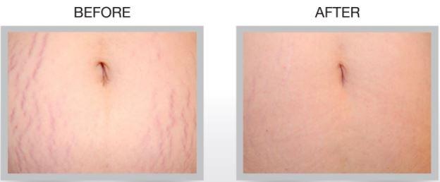 Khách hàng trước và sau điều trị tại A&B