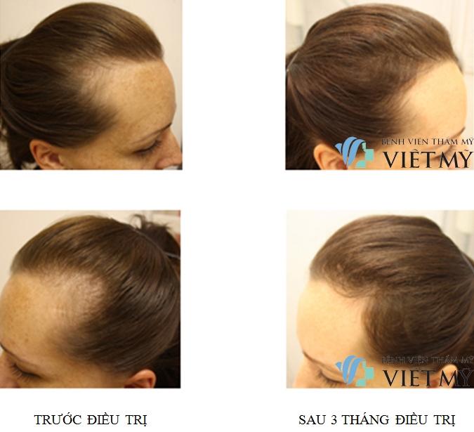 Đến TMV Việt Mỹ - rụng tóc không còn là nỗi lo