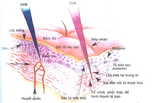 Tia UVA, UVB trong ánh nắng mặt trời gây nám da
