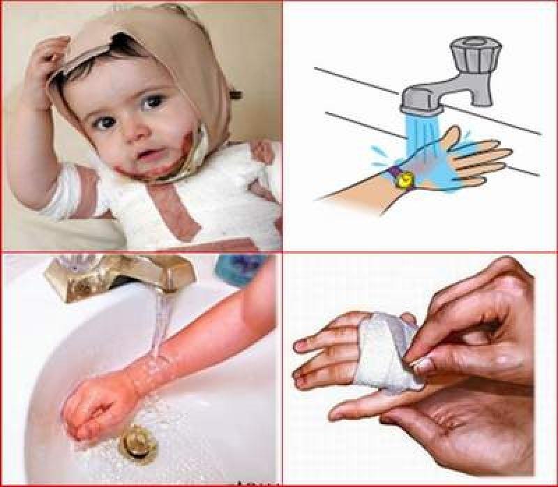 Cách xử lý khi trẻ bị bỏng