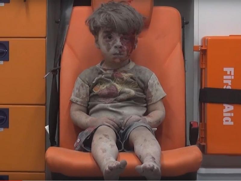 Bậu bé 5 tuổi người Syria trên chiếc xe cứu thương