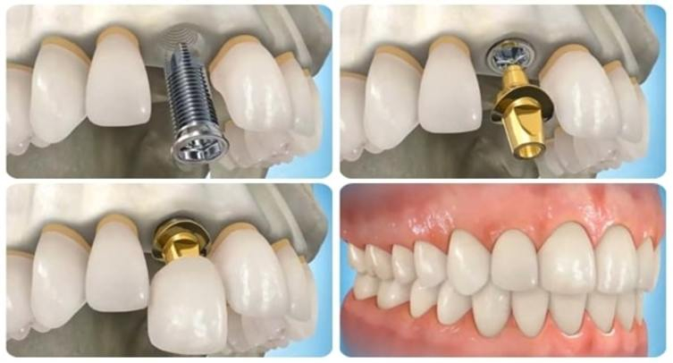 Mô phỏng quá trình đặt trụ và gắn răng sứ