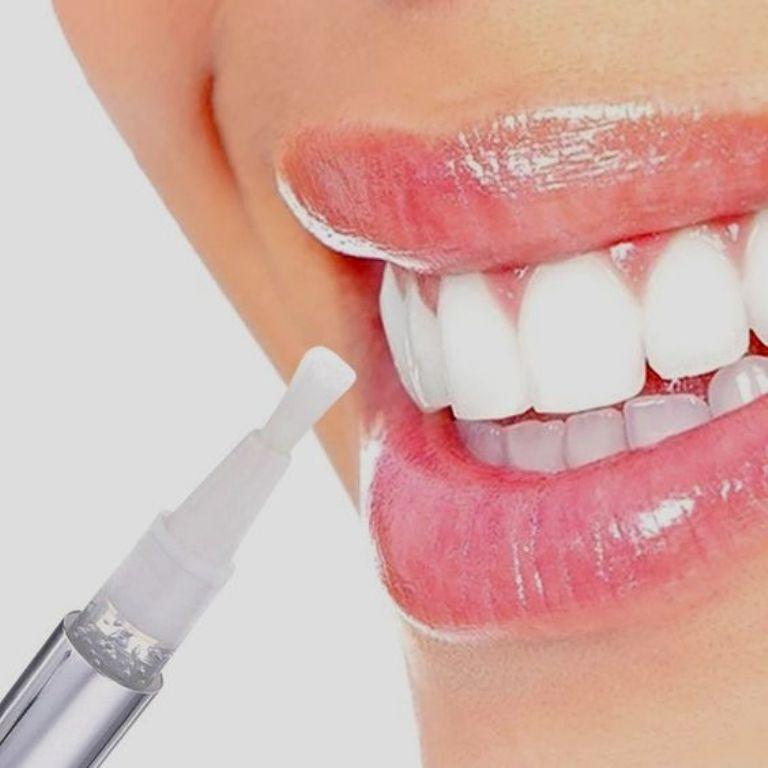 Top 5 bút tẩy trắng răng hiệu quả nhất cho răng ố vàng