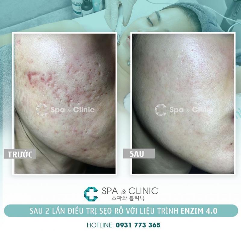 C Spa & Clinic - Trị Sẹo Rỗ