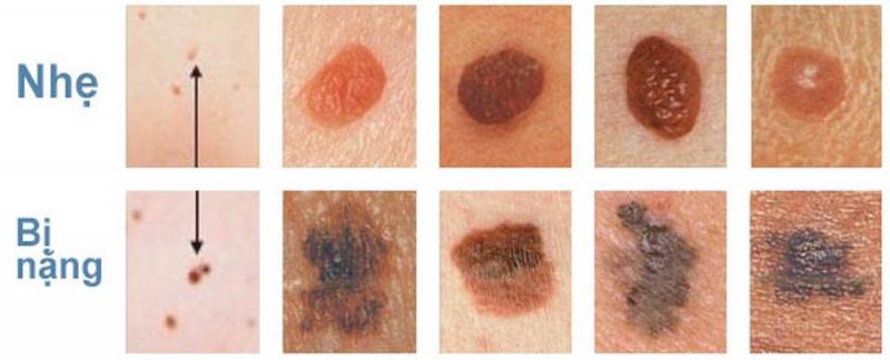 Giai đoạn ung thư da được phân chia dựa vào kích thước khối u, khả năng lây lan ...
