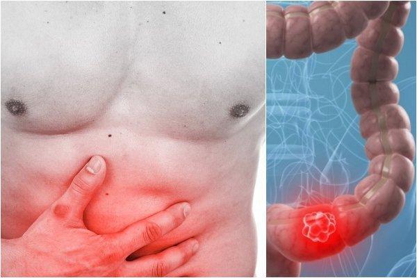 Dựa vào triệu chứng lâm sàng và các kết quả xét nghiệm, bác sĩ sẽ đưa ra chẩn đoán về giai đoạn phát triển của bệnh.