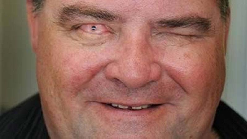 Cấy ghép răng vào mắt