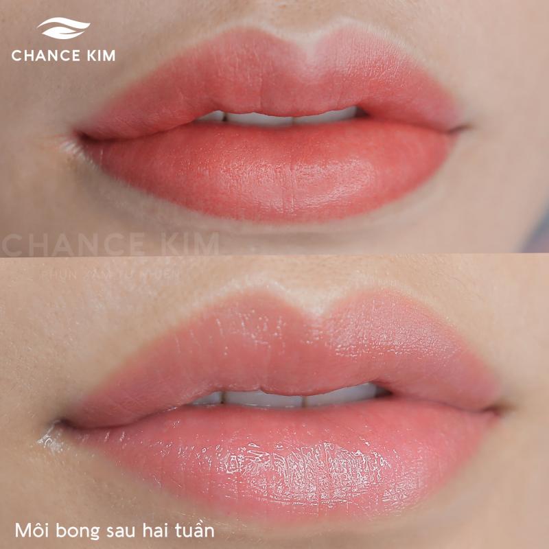 Chance Kim Beauty Center