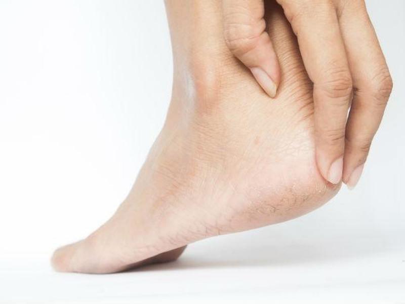 Top 15 Cách chữa nứt gót chân hiệu quả đơn giản tại nhà