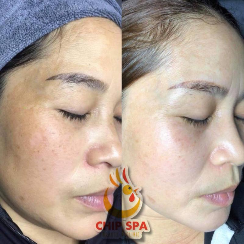 Chip Spa Beauty & Clinic