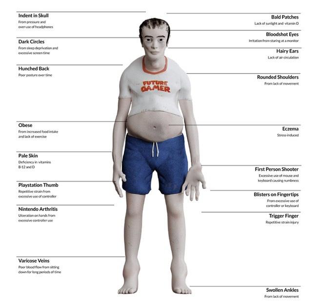 Nếu chơi game hàng chục tiếng mỗi ngày thì cơ thể bạn sẽ trông như thế này