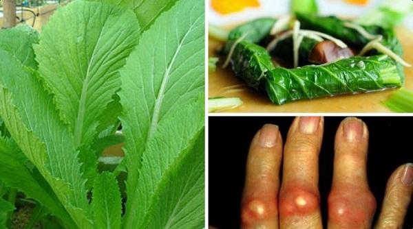 Chữa bệnh gút bằng bài thuốc từ cải bẹ xanh