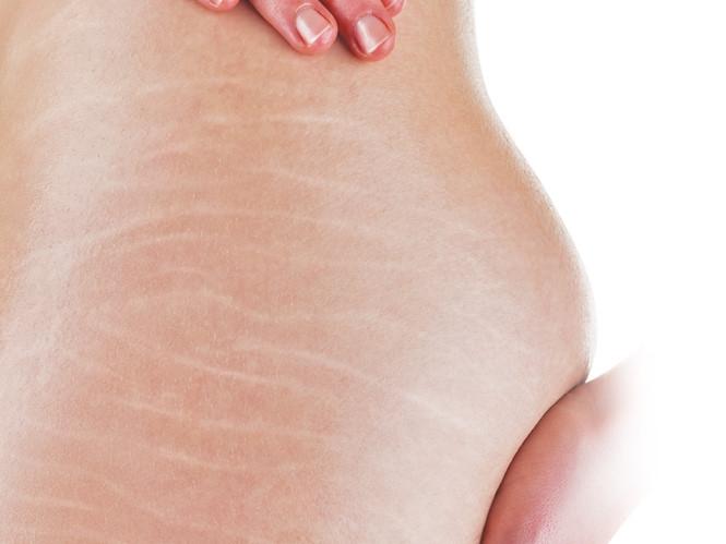 Tỏi giúp điều trị tình trạng rạn da
