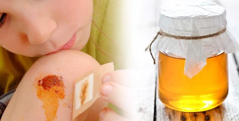 Mật ong có thể dùng làm thuốc bôi đối với những vết thương ngoài da