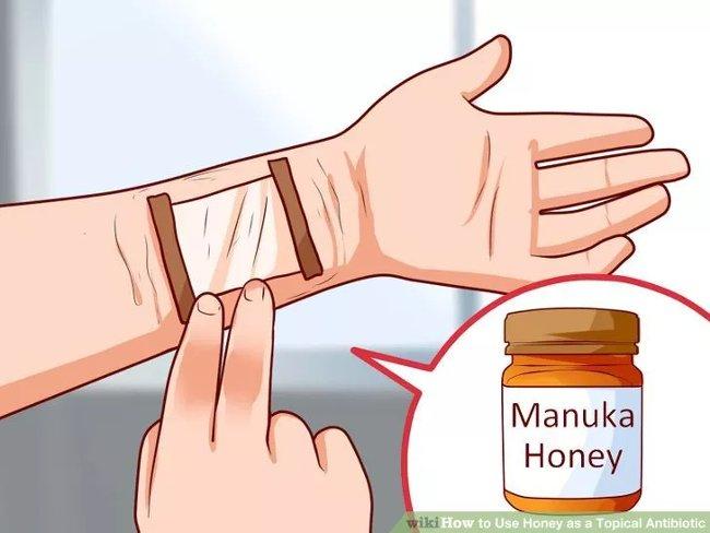 Thuộc tính kháng khuẩn, khử trùng và chống vi trùng tự nhiên của mật ong có thể giúp chữa lành vết thương