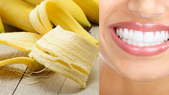 Một trong những bí kíp tẩy trắng răng hiệu quả tại nhà được nhiều người áp dụng chính là vỏ chuối.