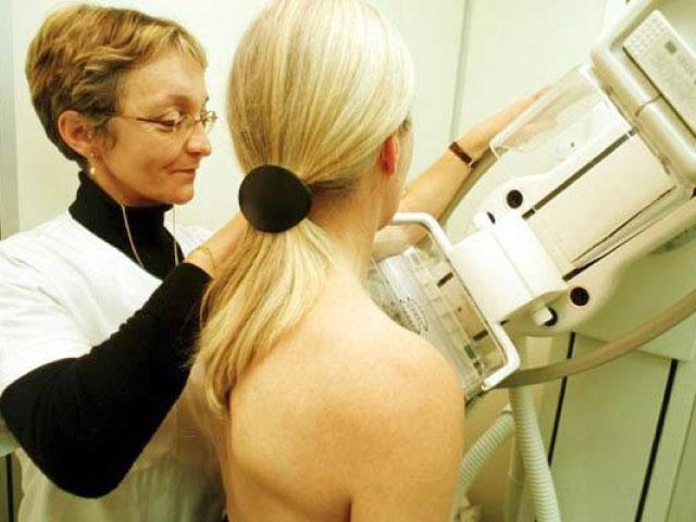 Chụp X-quang vú để chẩn đoán nhanh nhất