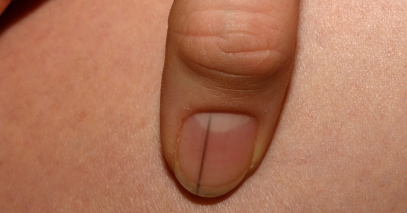 Có đường đen trên móng tay