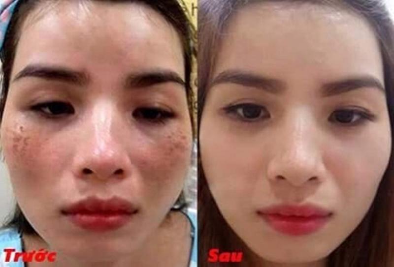 Tình trạng nám da của khách hàng cải thiện rõ rệt sau điều trị tại Cún Spa