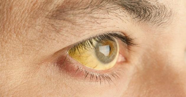Da bạn trở nên sần sùi và chuyển sang màu vàng